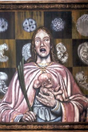 St. Agnes with Meningoencephalic Fetus